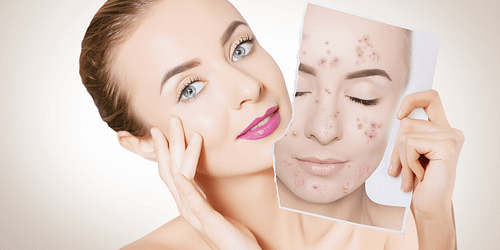 Les 6 meilleures huiles essentielles pour soigner l'acné