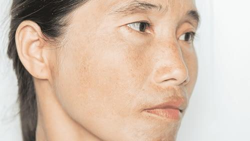 Comment prévenir et soigner les taches brunes sur le visage?